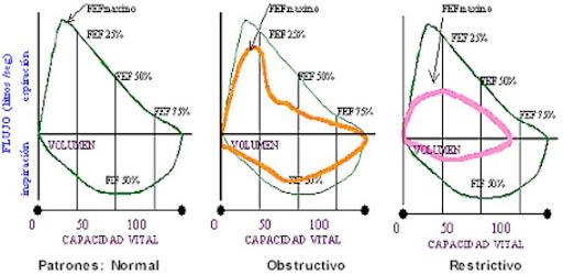 Patrones de la curva de espirometría