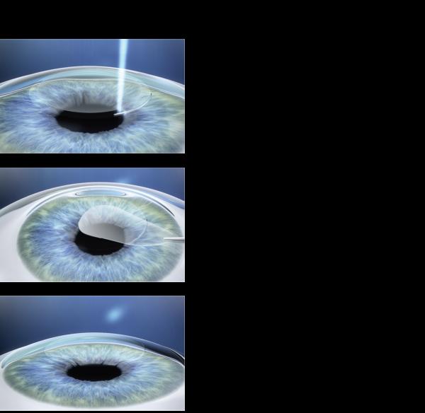 Relex Smile: il futuro per miopia ed astigmatismo miopico   MEDICITALIA.it