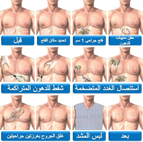 خطوات جراحة إزالة الثدي الكبير للرجل