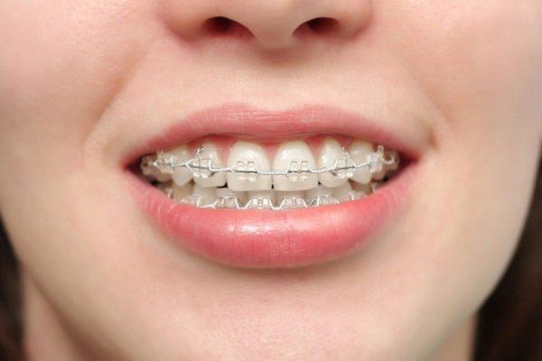 Có nên niềng răng không? Niềng răng có lợi ích gì?