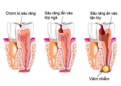 Lấy tủy răng sữa có nguy hiểm không, cần lưu ý những gì? 1