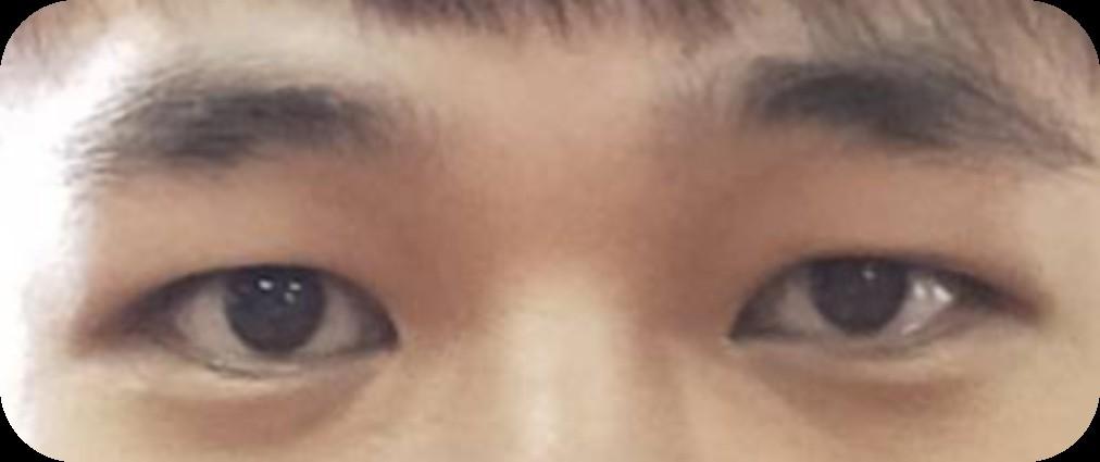 土型人-大小眼