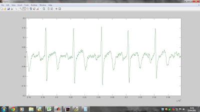 ecg matlab filtering