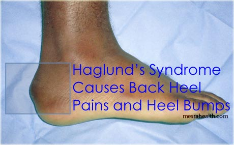 Photo showing a Haglund's syndrome foot.