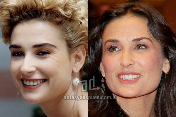 The new smile of Demi Moore, afterdental surgery