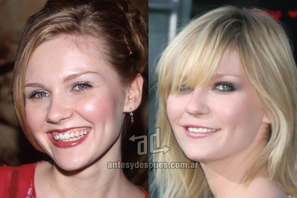 The new smile of Kirsten Dunst, afterdental surgery