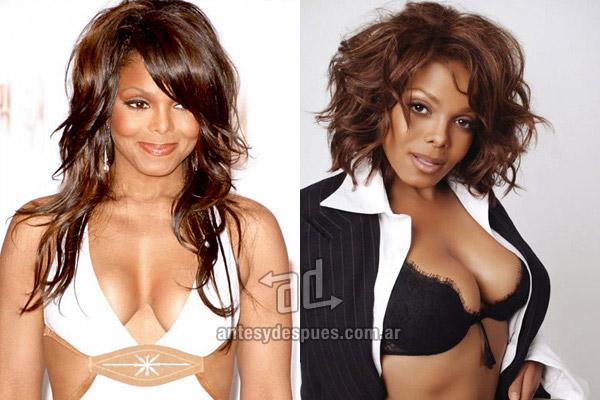 Los pechos operados de Janet Jackson