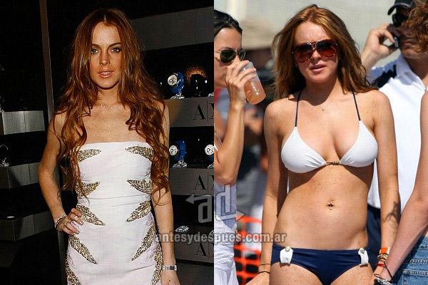 Los pechos operados de Lindsay Lohan