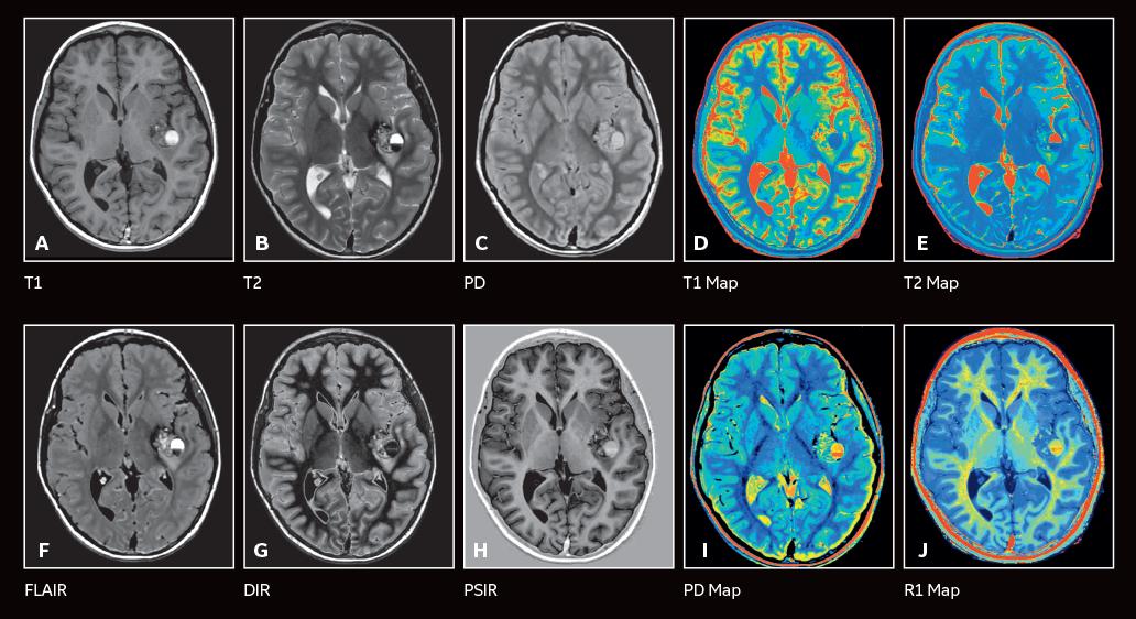 Hình ảnh của chụp cộng hưởng từ MRInão