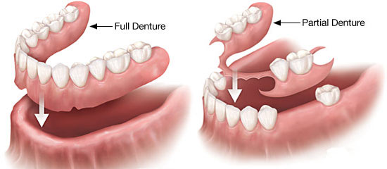 What Do You Need to Learn About The Difference Between Full and Partial Dentures