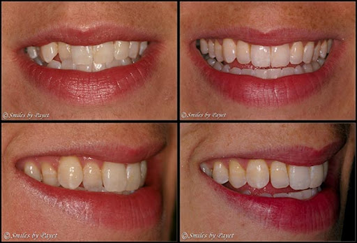 Before And After Braces Crossbite. efore-after-races-2.jpg