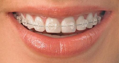 Ưu nhược điểm của các phương pháp niềng răng mắc cài thẩm mỹ