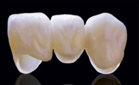Bọc răng sứ có nguy hiểm không ? – Kiến Thức Nha Khoa 1