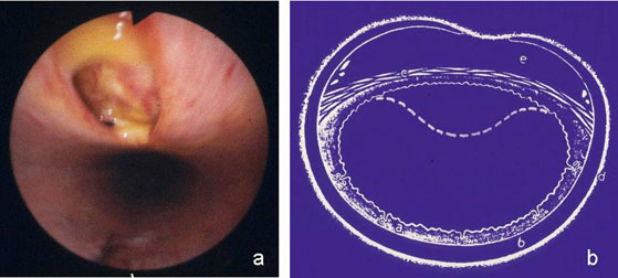 """Perforation of the dorsal fibroelastic membrane by dorsal ends of tracheal rings  (""""contre coup"""" phenomenon) (a), scheme of tracheal transverse section (b)."""