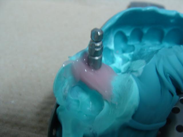 خطوات زرعة أسنان مصورة واحد DSC02784.JPG