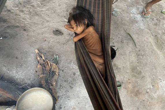 Foto de criança expõe crise na assistência à saúde dos yanomamis -  09/05/2021 - Cotidiano - Folha