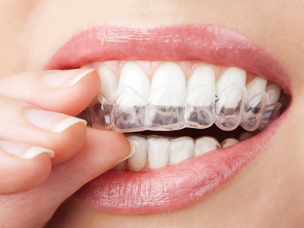 Niềng răng Invisalign có đau không - 100% không đau