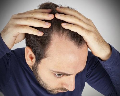 کم پشتی مو در مردان