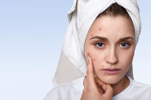 Factores Hormonales Piel Grasa
