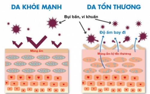 Tầm quan trọng của hàng rào bảo vệ da