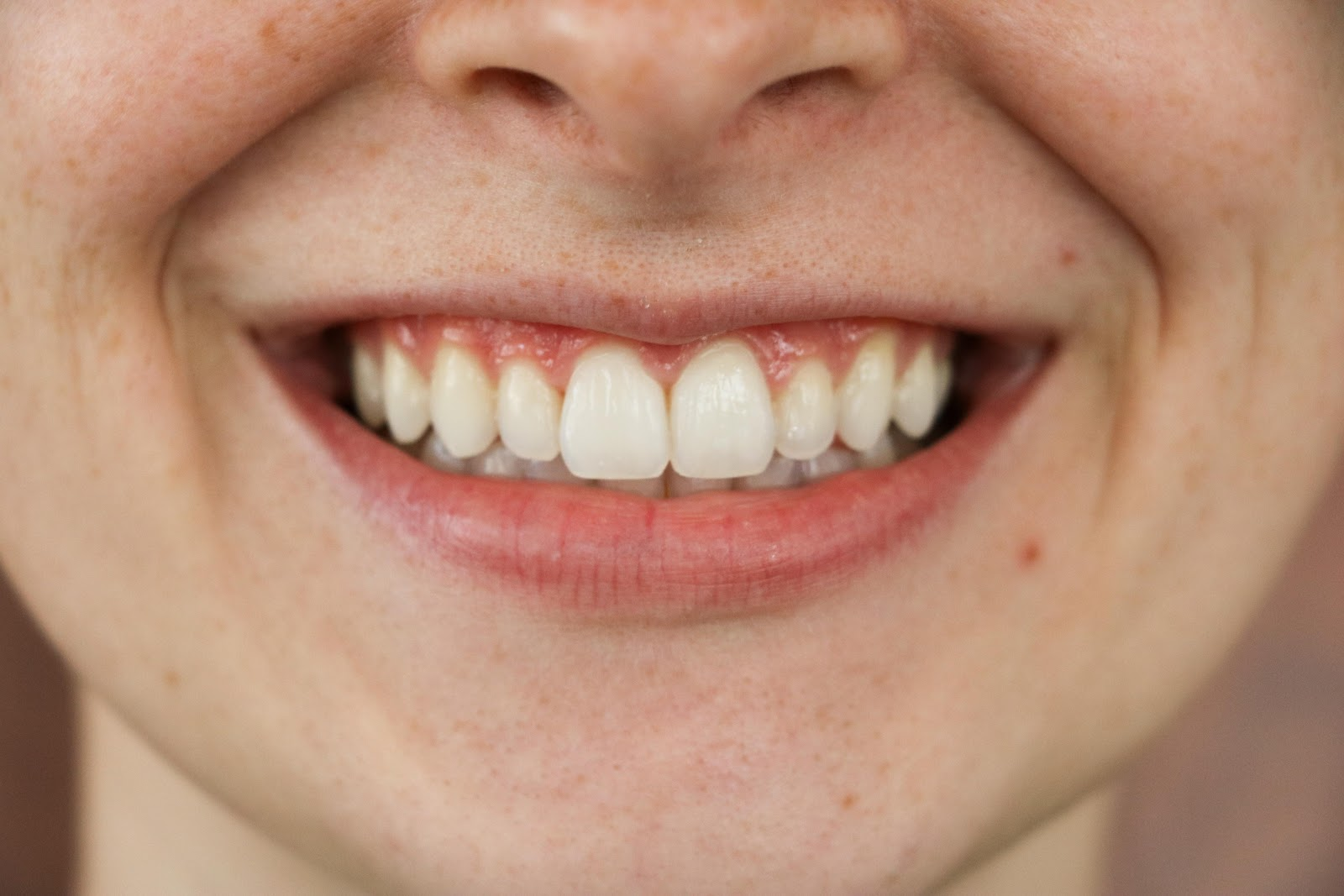 Sydney's teeth before with teeth stains