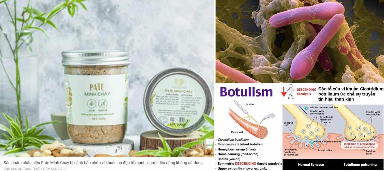 Ngộ độc thực phẩm do vi khuẩn Clostridium botulinum