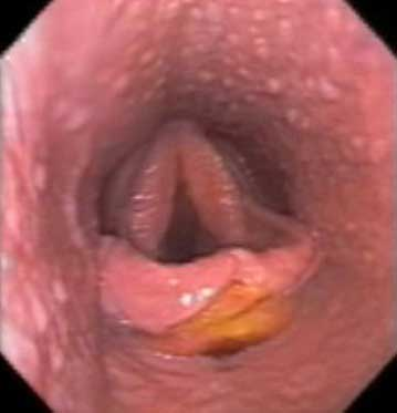 Subepiglottic ulcer in a 2 year old Thoroughbred filly.