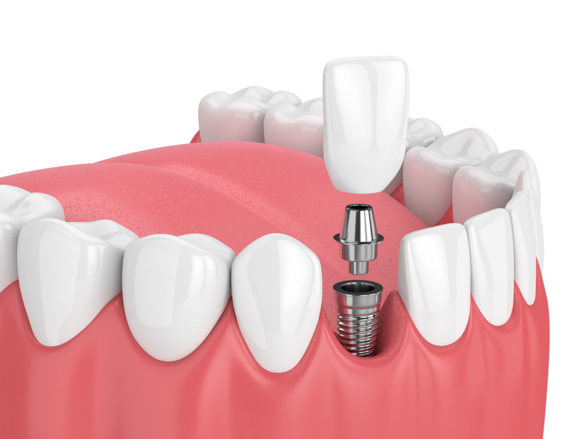 Tooth Implants Service – The Best Dental Implants Service?
