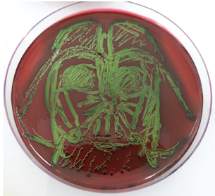 Escherichia coli sur EMB