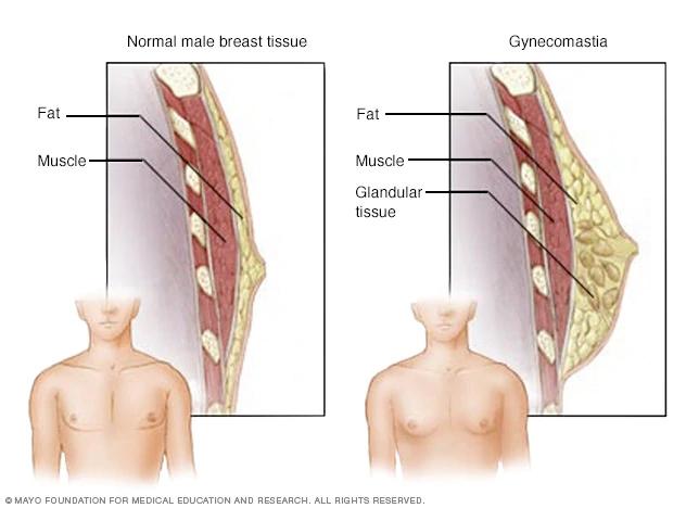 mcdc7_gynecomastia-8col.jpg