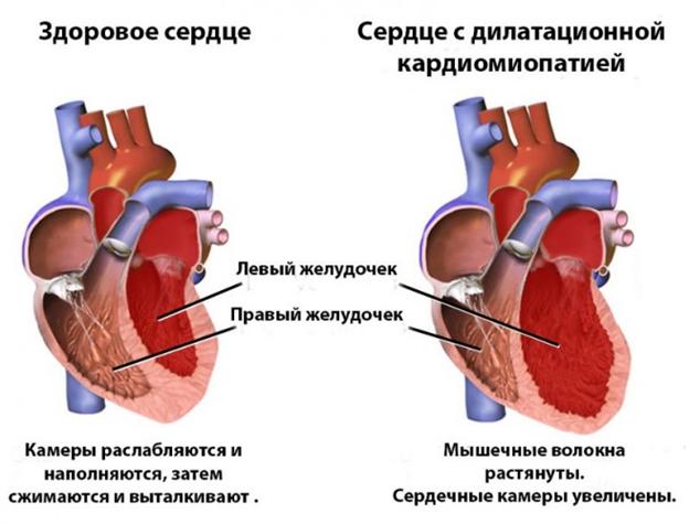 Дкмп диагноз