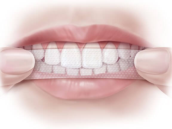 Tự tẩy trắng răng tại nhà, coi chừng mang họa [TƯ VẤN TỪ NHA SỸ]