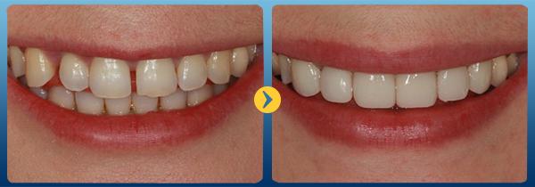 Bọc răng sứ cho răng thưa có được không? - Nha Khoa Bally 1