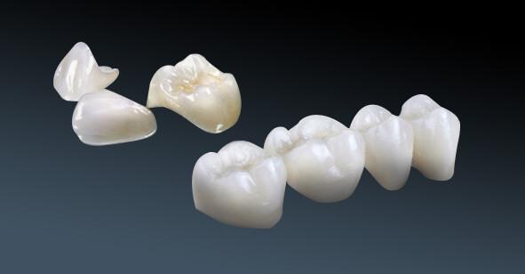 Sự khác nhau giữa răng sứ cercon và zirconia - Nha khoa Bally