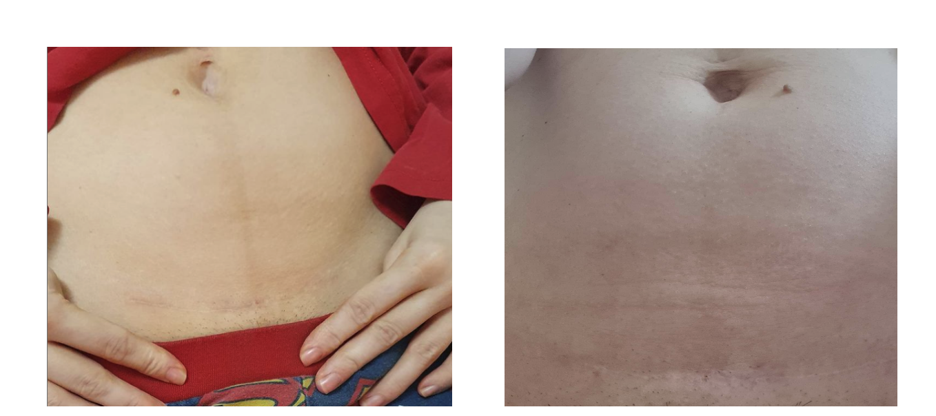 Before and After c-section scar with CicaLux