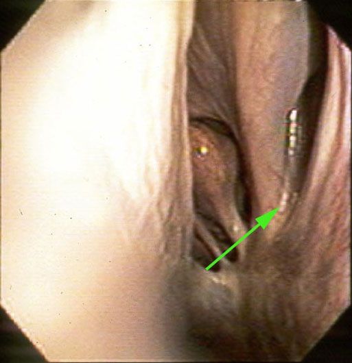"Endoscopic view of the caudal nasal cavity showing the ""drainage angle"" (arrow) where exudates from the rostral and caudal maxillary sinuses discharge."
