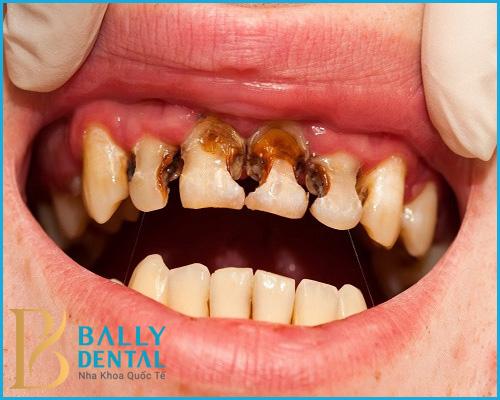 Viêm tuỷ răng có cần đặt thuốc diệt tuỷ? - Chữa bệnh nha khoa an toàn
