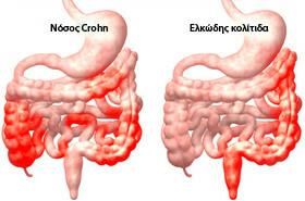 Νοσος Crohn, Ελκώδης κολίτιδα - λαπαροσκοπική - Dr. Δημήτριος ...
