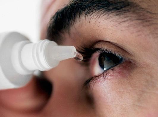 Nhỏ thuốc nhỏ mắt điều trị viêm giác mạc theo chỉ định