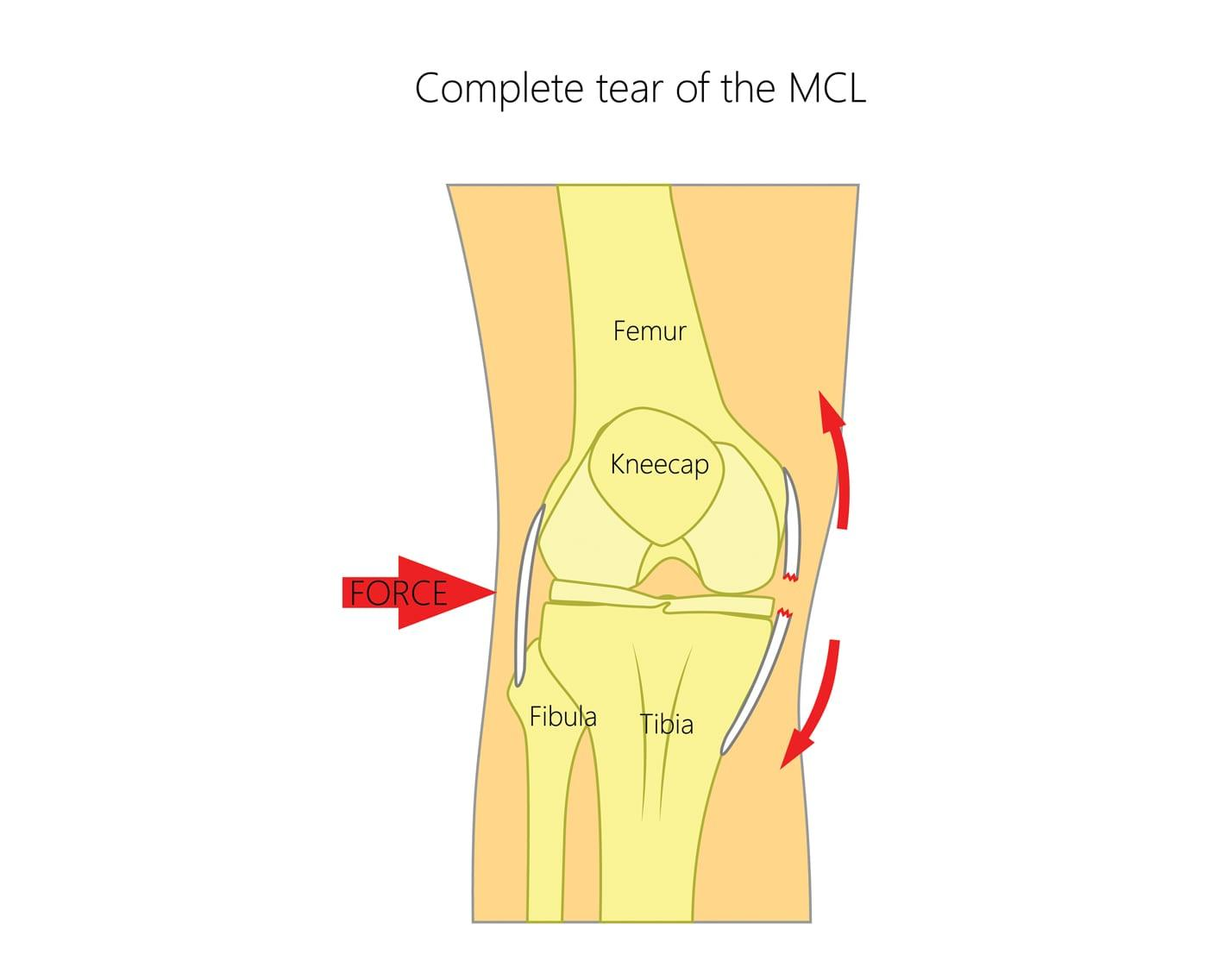 Medial Collateral Ligament (MCL) Tears | Upswing Health