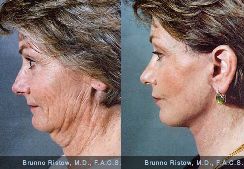 vampire facelift how long does it last? how long does a liquid facelift last? how much does a vampire facelift cost? what is the cost of a facelift? how much does a lower facelift cost? how much does vampire facelift cost? how much is a deep plane facelift? how much does facelift dentures cost?
