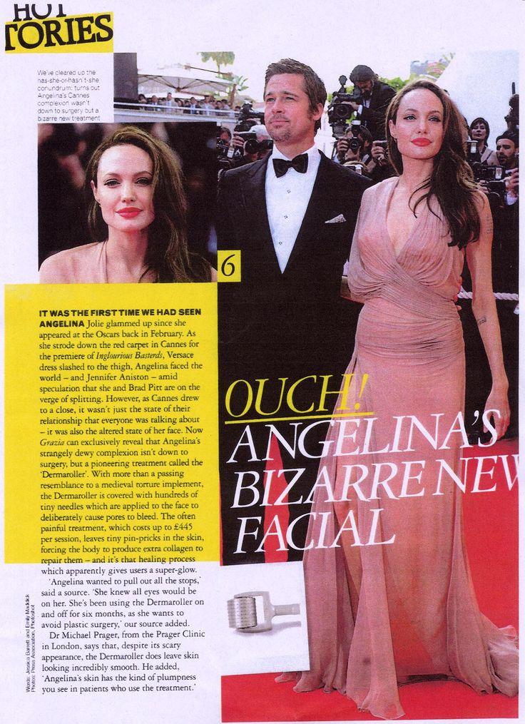 Angelina Jolie và Brad Pitt lên mặt báo trang nhất chia sẻ về bí quyết làm đẹp của họ: máy lăn kim tại nhà