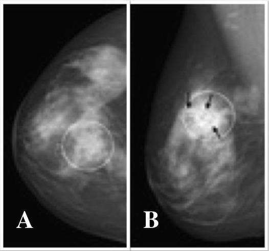 Image result for Lobular carcinoma gross