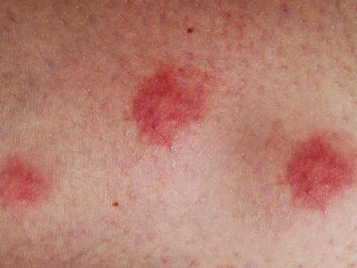 Foot Eczema - OurEczemaStory.com