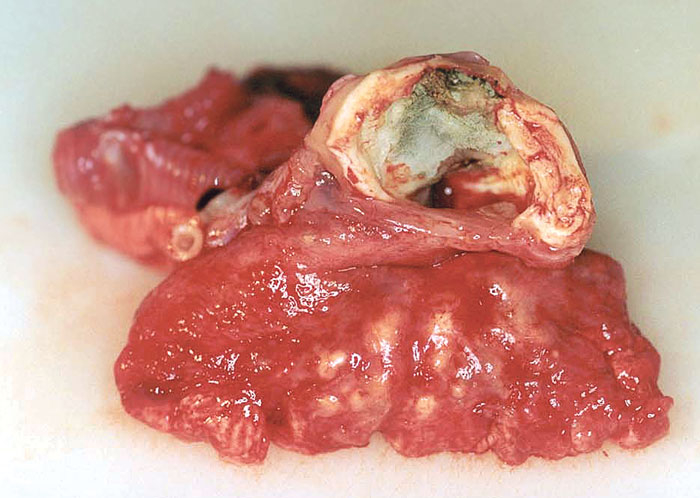 A dissection of the aspergilloma and the lungs of the bird in Figs 40.62 and 40.63. Note the numerous smaller aspergillomas developing in the lungs.
