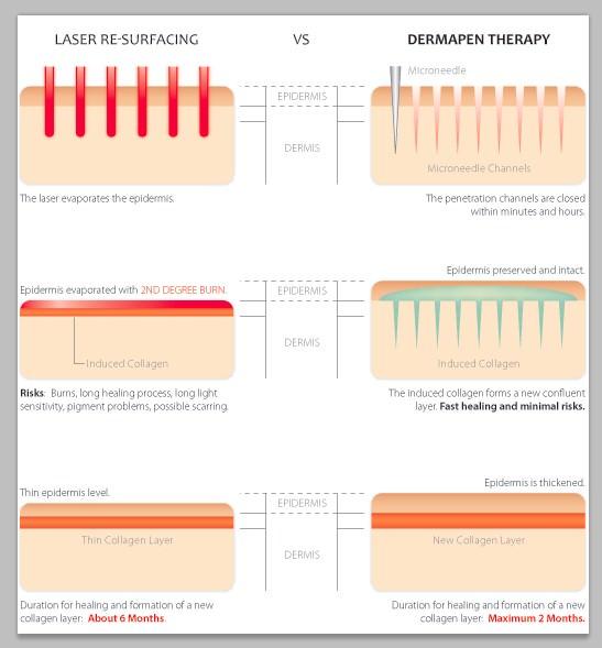 Cơ chế hoạt động của phương pháp trị sẹo lõm bằng lăn kim là kích thích da tự phục hồi