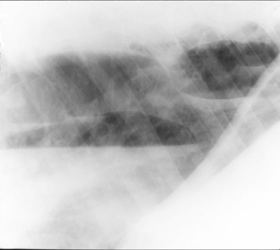A right lateral radiograph of the same horse in November with progressive chronic cavitary pleuritis. Remaining lung has good aeration and vascular detail despite the serious pleural disease.