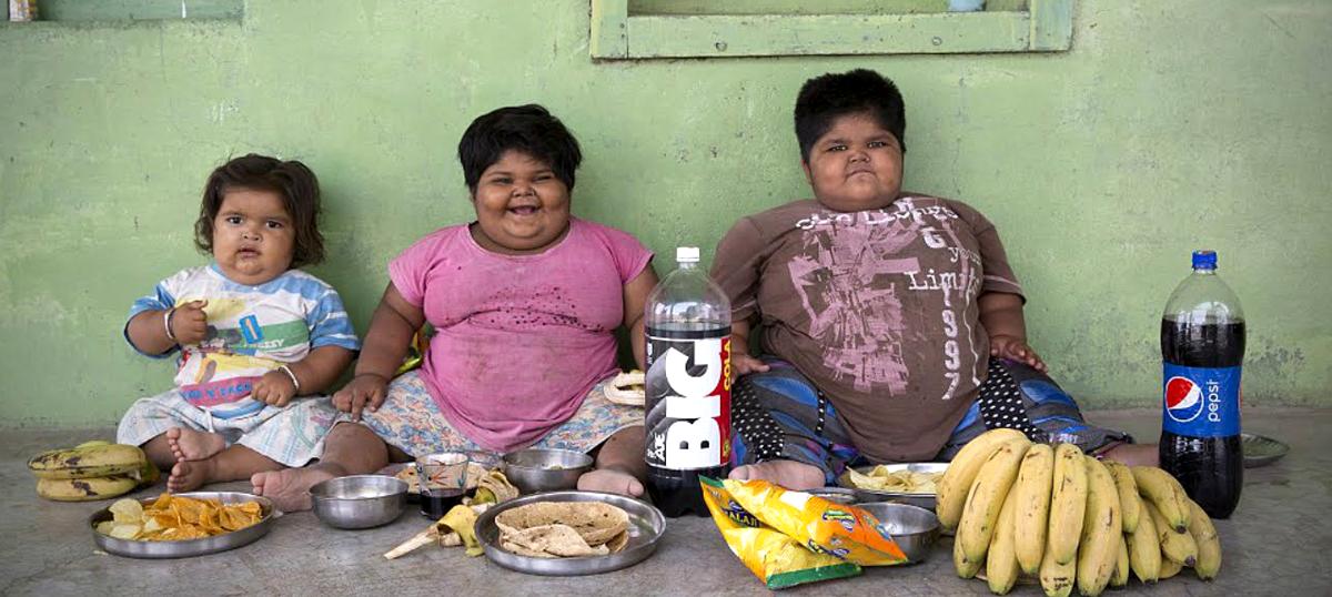 Image result for obese children