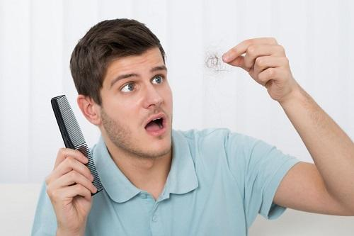 ریزش مو در جوانان