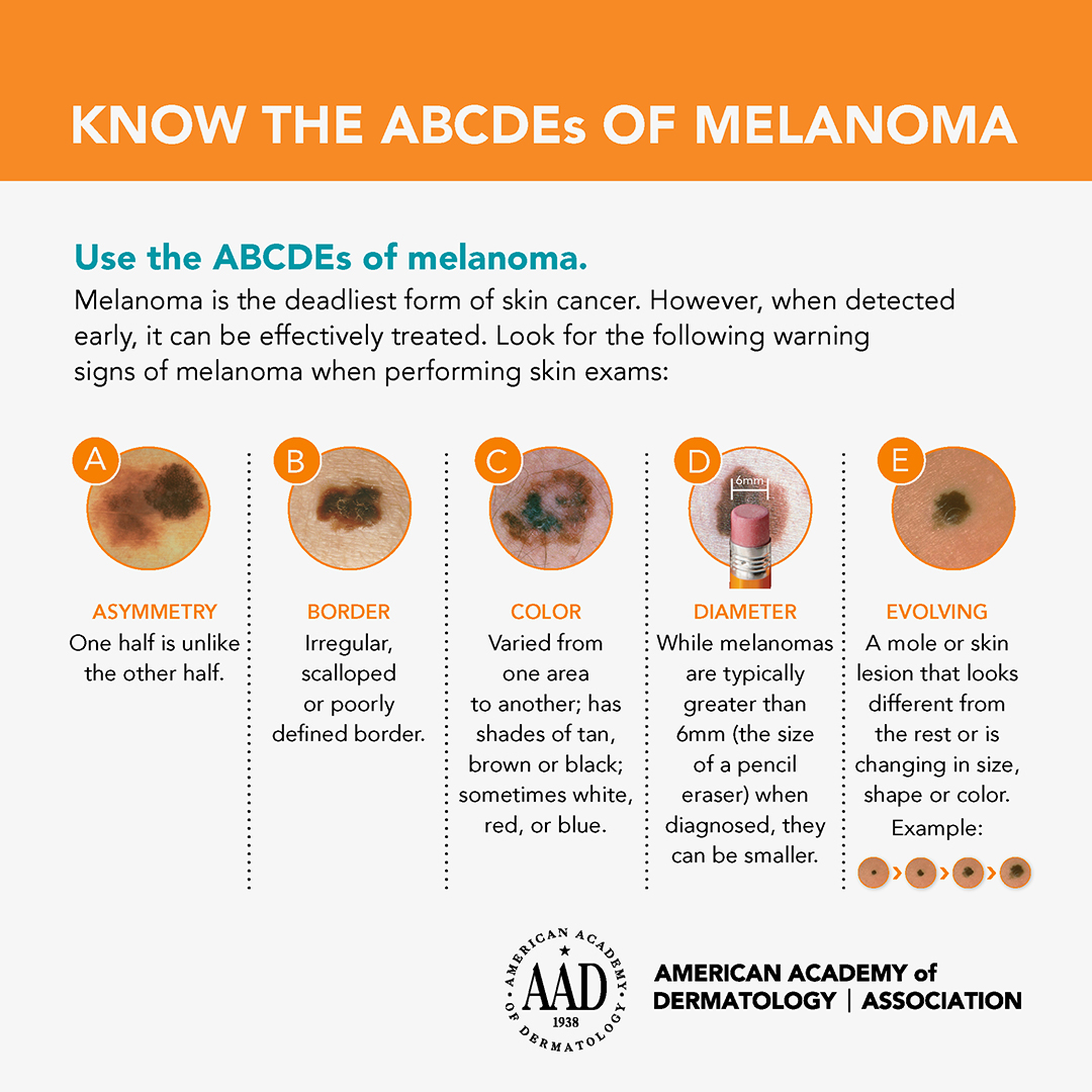 American Academy of Dermatology ABCDEs of Melanoma